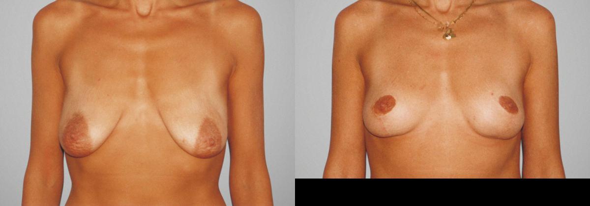 Почему одна грудь наполняется меньше